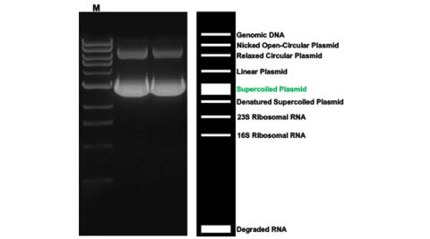 Gel showing plasmid DNA