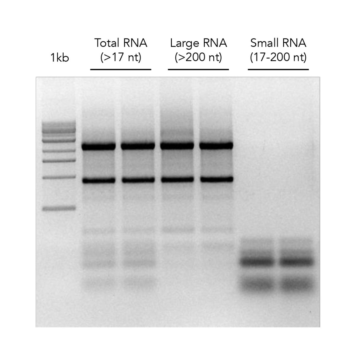 RNA gel electrophoresis