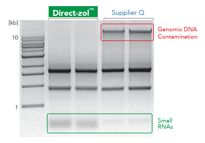 RNA Gel showing Genomic DNA contamination